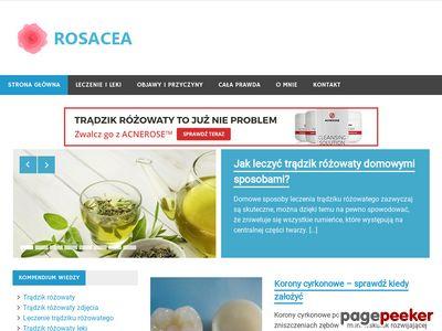 Rosacea.net.pl to domowe sposoby na trądzik różowaty!