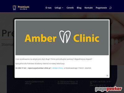 Implanty zębów - stomatologia Alfadent